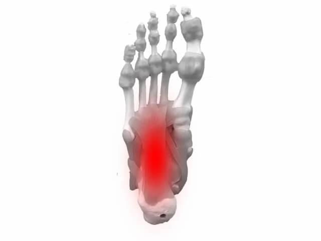 足の裏の痛みの原因と治療法