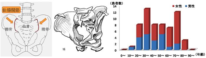 仙腸関節障害の性別・年齢分布